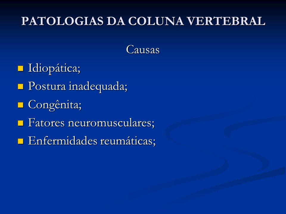 PATOLOGIAS DA COLUNA VERTEBRAL Causas Idiopática; Idiopática; Postura inadequada; Postura inadequada; Congênita; Congênita; Fatores neuromusculares; Fatores neuromusculares; Enfermidades reumáticas; Enfermidades reumáticas;