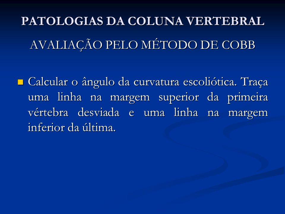 PATOLOGIAS DA COLUNA VERTEBRAL Processo espinhoso saliente.
