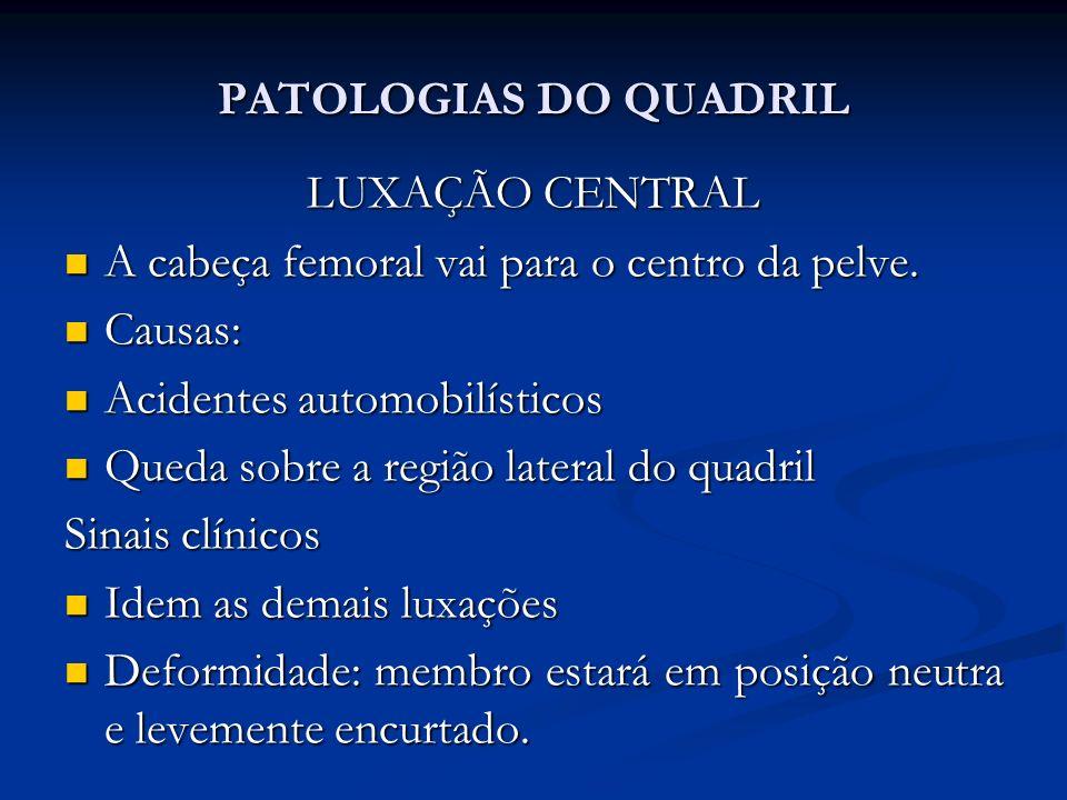 PATOLOGIAS DO QUADRIL LUXAÇÃO CENTRAL A cabeça femoral vai para o centro da pelve.