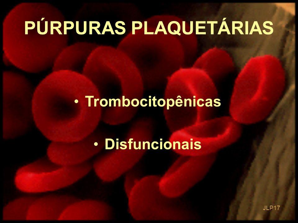 JLP 17 PÚRPURAS PLAQUETÁRIAS Trombocitopênicas Disfuncionais