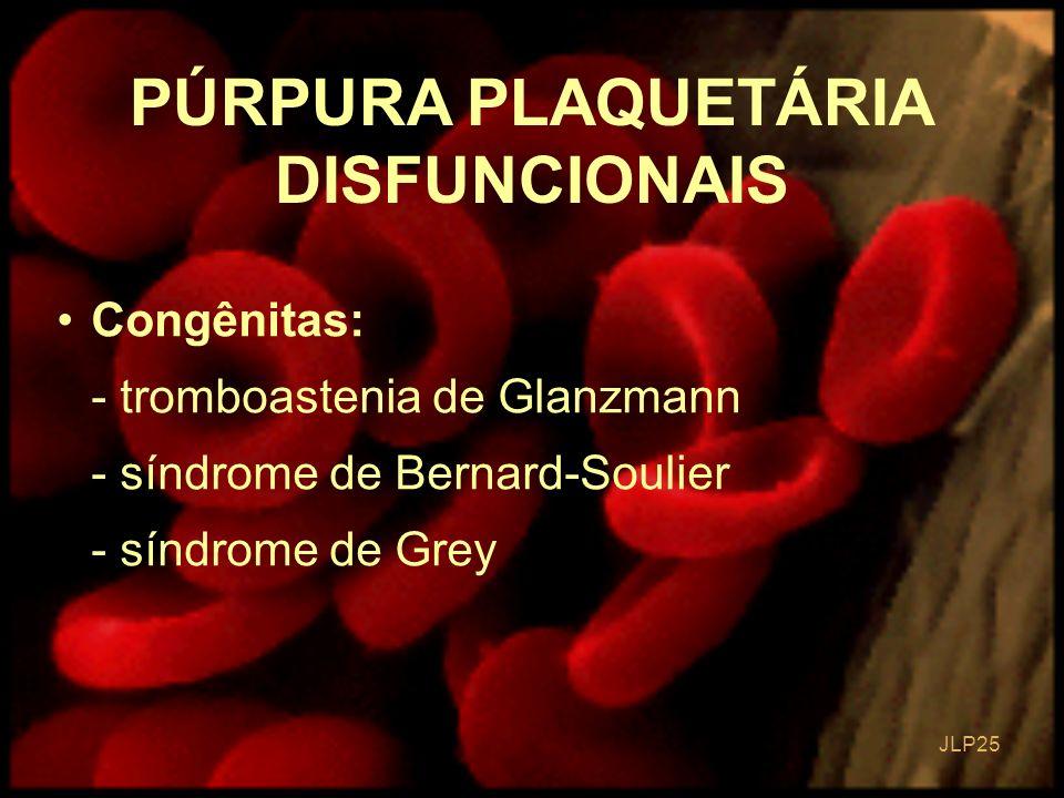 JLP 25 Congênitas: - tromboastenia de Glanzmann - síndrome de Bernard-Soulier - síndrome de Grey PÚRPURA PLAQUETÁRIA DISFUNCIONAIS