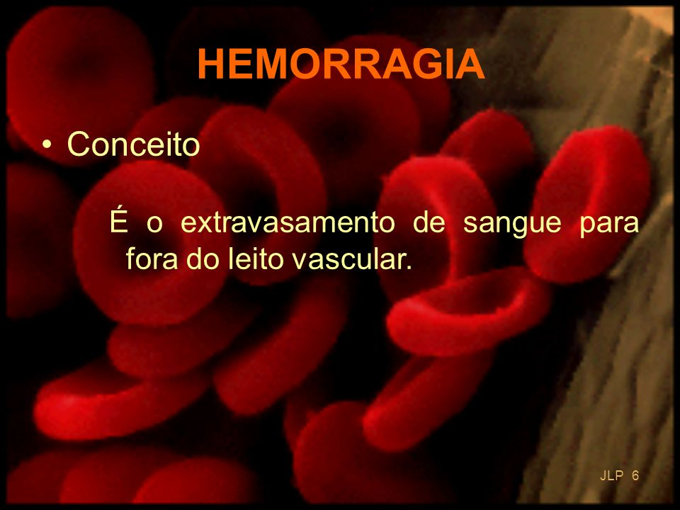 JLP 57 Hemofilia grave 15 a 20 u/kg/dia durante 3 dias DOSAGEM DOS FATORES VIII OU IX