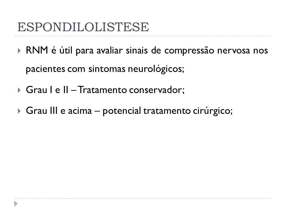 ESPONDILOLISTESE RNM é útil para avaliar sinais de compressão nervosa nos pacientes com sintomas neurológicos; Grau I e II – Tratamento conservador; G