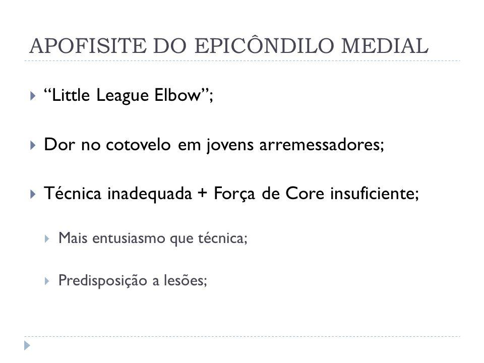 APOFISITE DO EPICÔNDILO MEDIAL Little League Elbow; Dor no cotovelo em jovens arremessadores; Técnica inadequada + Força de Core insuficiente; Mais en