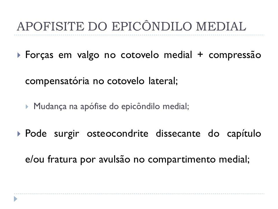 APOFISITE DO EPICÔNDILO MEDIAL Forças em valgo no cotovelo medial + compressão compensatória no cotovelo lateral; Mudança na apófise do epicôndilo med
