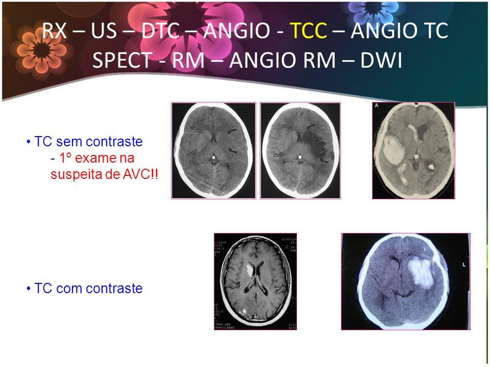 TC sem contraste - 1º exame na suspeita de AVC!! TC com contraste RX – US – DTC – ANGIO - TCC – ANGIO TC SPECT - RM – ANGIO RM – DWI