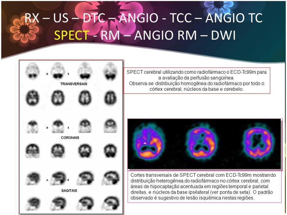 SPECT cerebral utilizando como radiofármaco o ECD-Tc99m para a avaliação da perfusão sangüínea. Observa-se distribuição homogênea do radiofármaco por