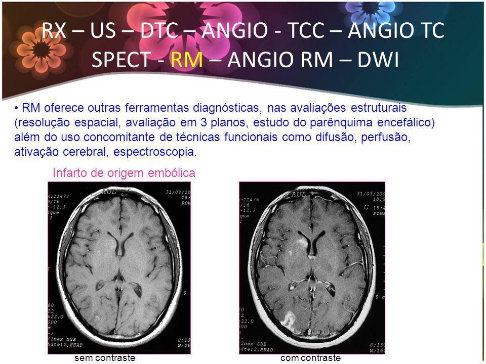 RM oferece outras ferramentas diagnósticas, nas avaliações estruturais (resolução espacial, avaliação em 3 planos, estudo do parênquima encefálico) al