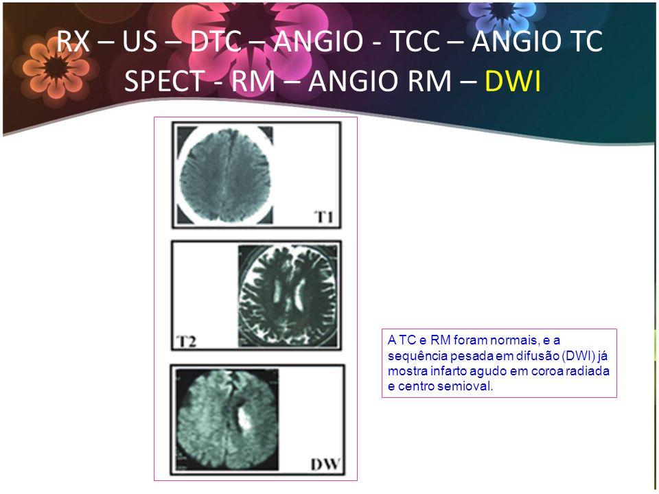 RX – US – DTC – ANGIO - TCC – ANGIO TC SPECT - RM – ANGIO RM – DWI A TC e RM foram normais, e a sequência pesada em difusão (DWI) já mostra infarto ag