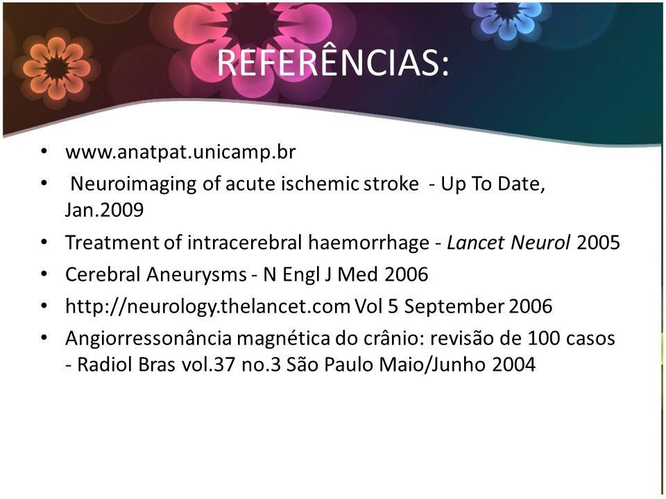 REFERÊNCIAS: www.anatpat.unicamp.br Neuroimaging of acute ischemic stroke - Up To Date, Jan.2009 Treatment of intracerebral haemorrhage - Lancet Neurol 2005 Cerebral Aneurysms - N Engl J Med 2006 http://neurology.thelancet.com Vol 5 September 2006 Angiorressonância magnética do crânio: revisão de 100 casos - Radiol Bras vol.37 no.3 São Paulo Maio/Junho 2004