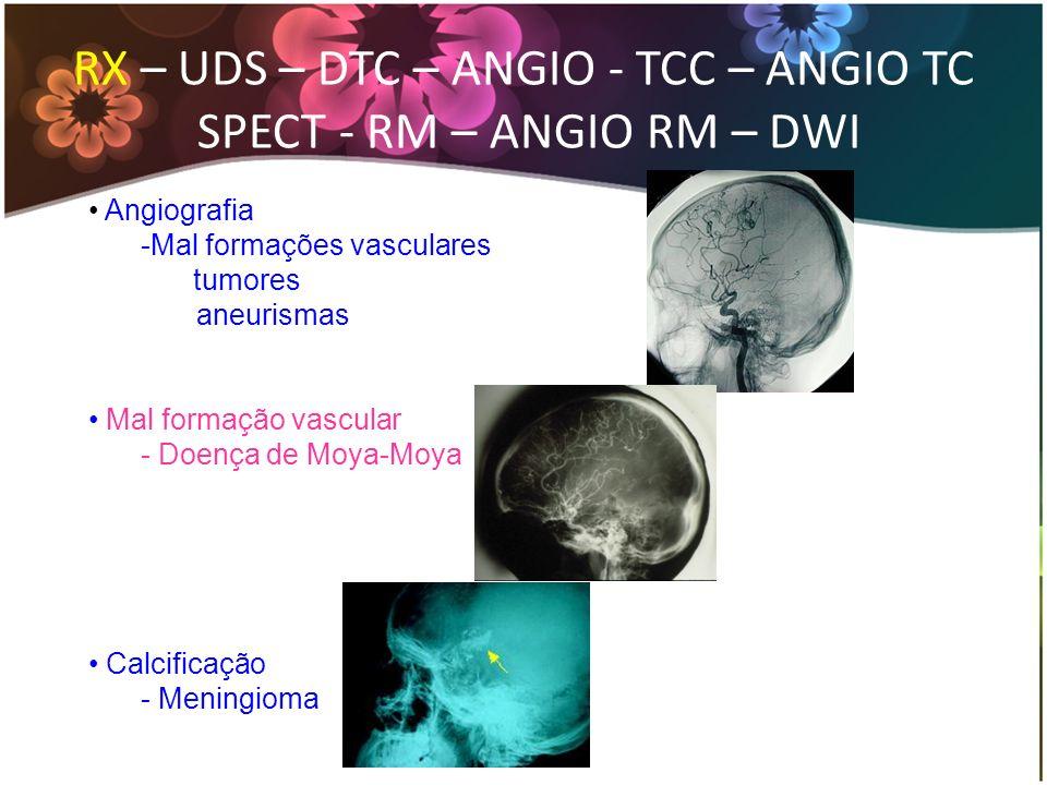 RX – UDS – DTC – ANGIO - TCC – ANGIO TC SPECT - RM – ANGIO RM – DWI Angiografia -Mal formações vasculares tumores aneurismas Mal formação vascular - D