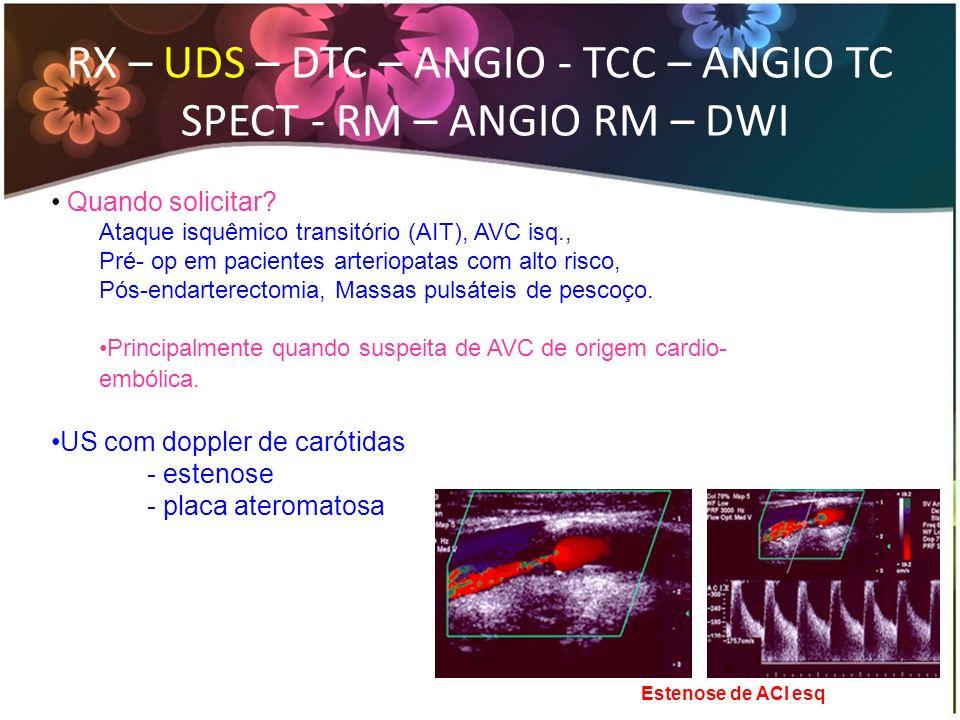 RX – US – DTC – ANGIO - TCC – ANGIO TC SPECT - RM – ANGIO RM – DWI Angio-RM arterial do encéfalo.