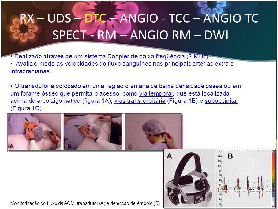RX – UDS – DTC – ANGIO - TCC – ANGIO TC SPECT - RM – ANGIO RM – DWI O DTC é o método de escolha para acompanhar os pacientes com estenose intracraniana que foram submetidos a tratamento endovascular (stent).