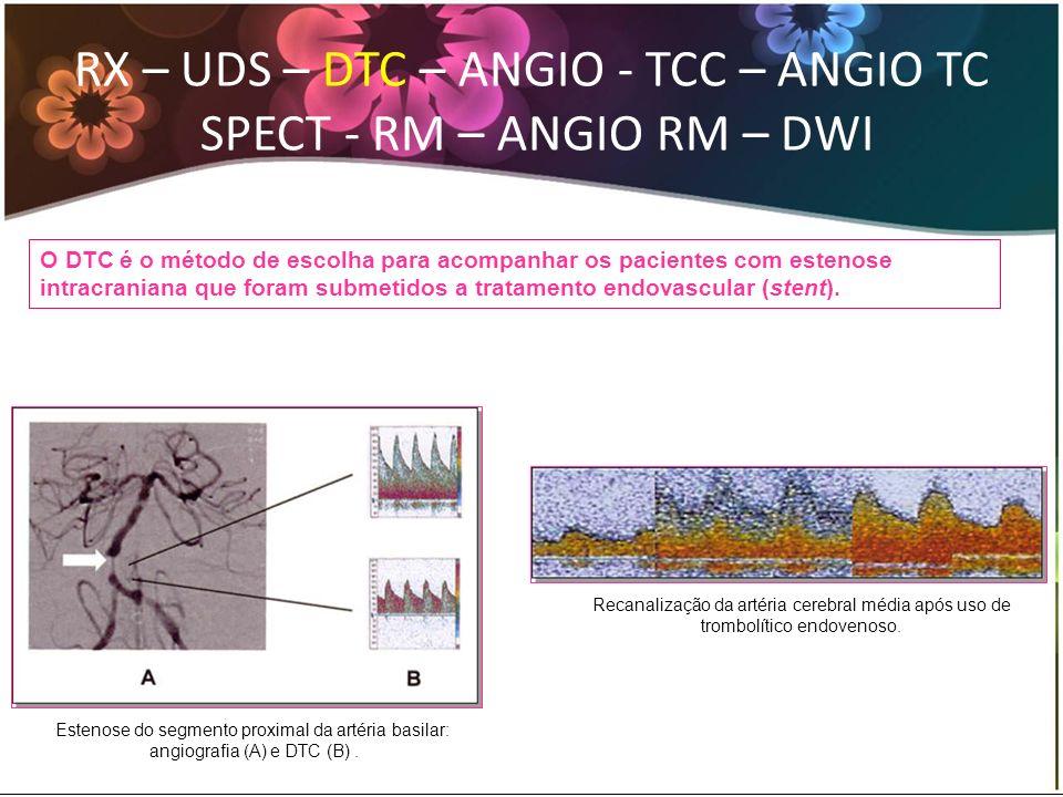 RX – UDS – DTC – ANGIO - TCC – ANGIO TC SPECT - RM – ANGIO RM – DWI O DTC é o método de escolha para acompanhar os pacientes com estenose intracranian