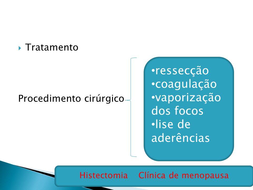 Tratamento Procedimento cirúrgico ressecção coagulação vaporização dos focos lise de aderências Histectomia Clínica de menopausa
