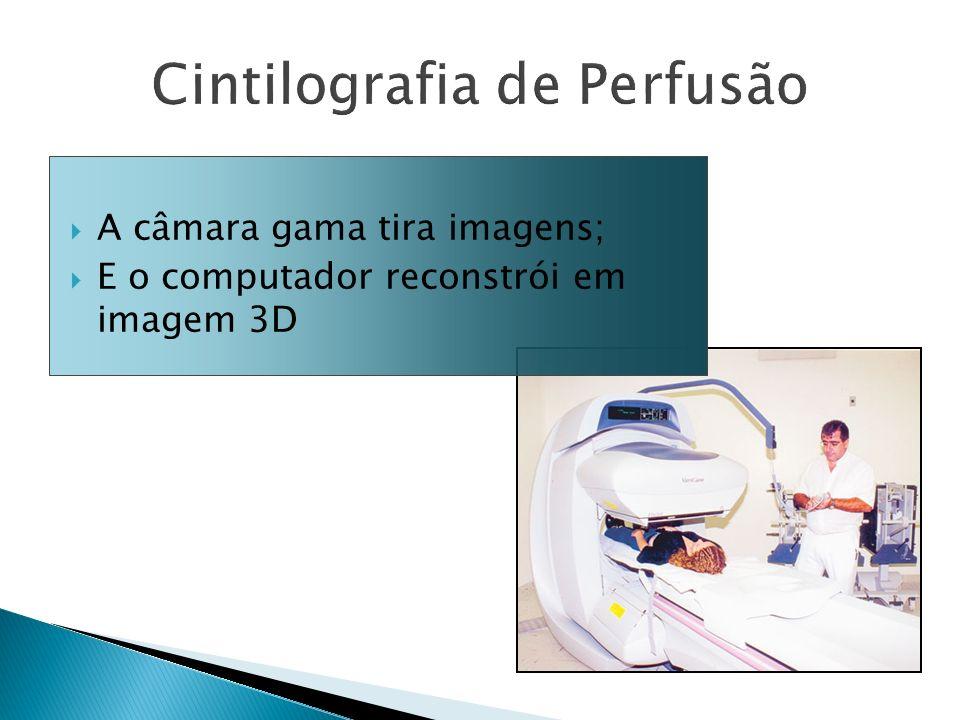 A câmara gama tira imagens; E o computador reconstrói em imagem 3D