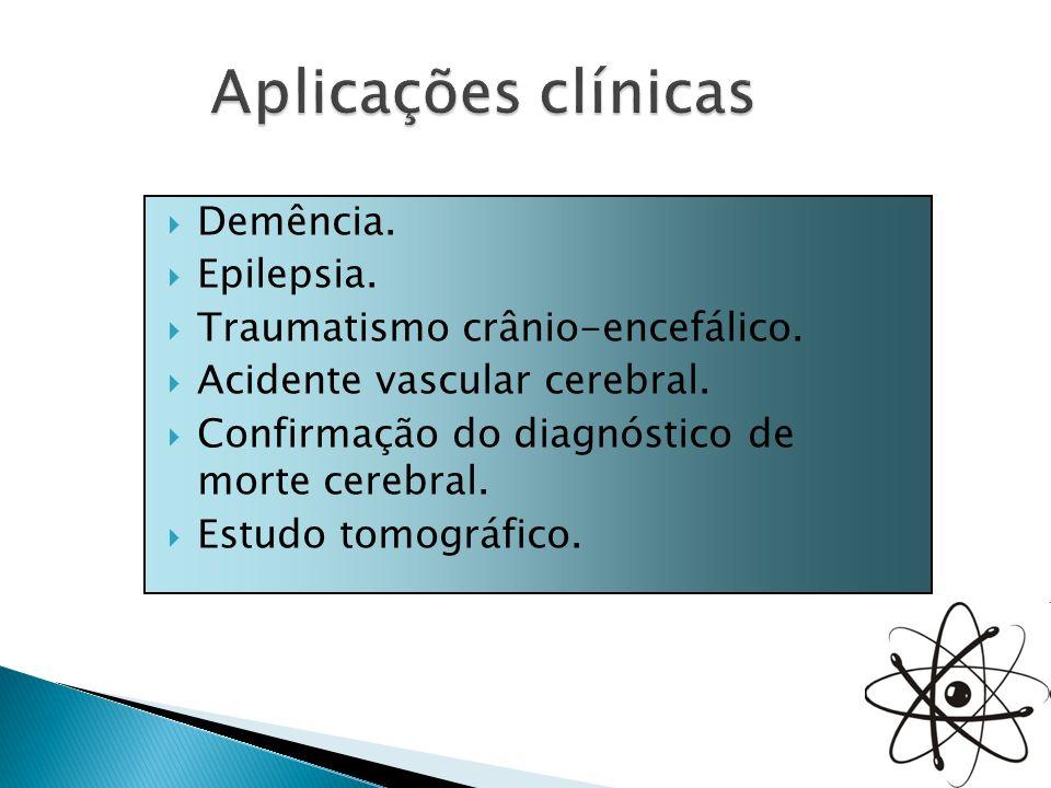 Demência. Epilepsia. Traumatismo crânio-encefálico. Acidente vascular cerebral. Confirmação do diagnóstico de morte cerebral. Estudo tomográfico.