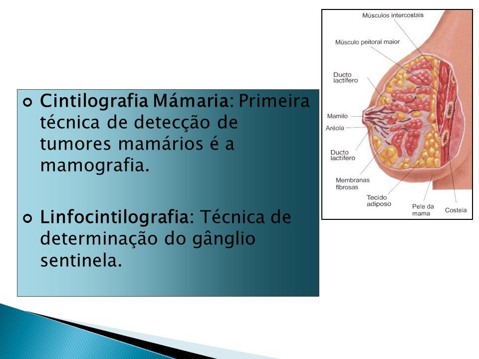 Cintilografia Mámaria: Primeira técnica de detecção de tumores mamários é a mamografia. Linfocintilografia: Técnica de determinação do gânglio sentine
