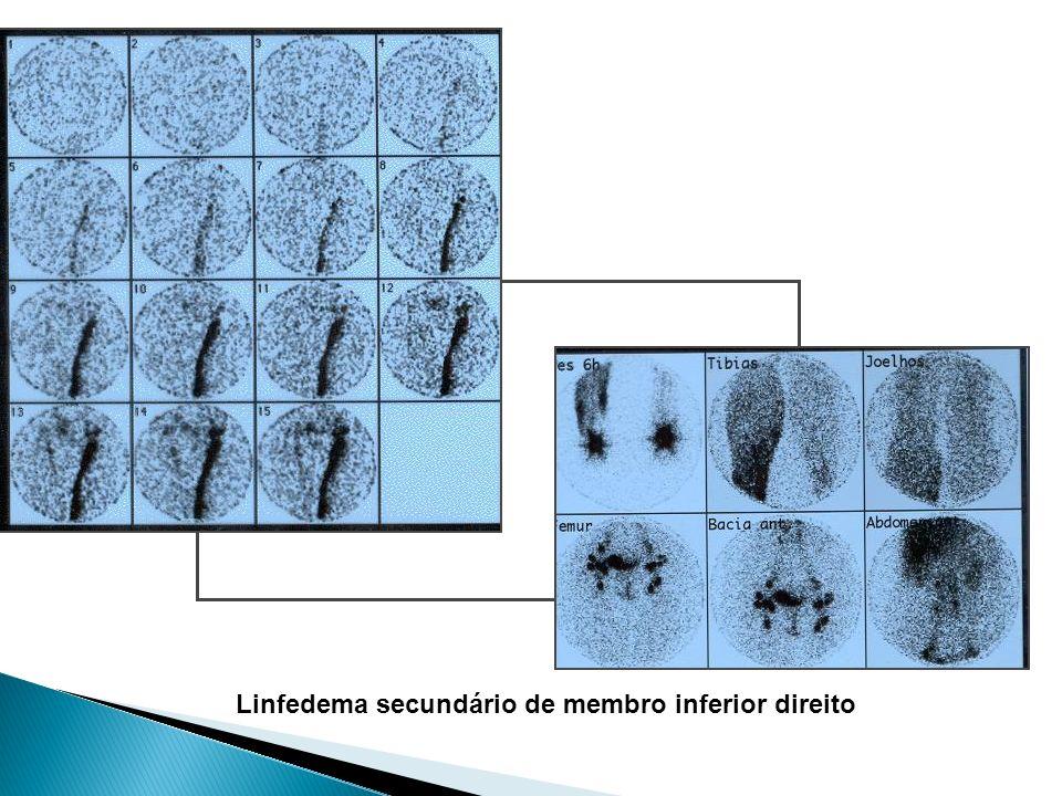Linfedema secundário de membro inferior direito