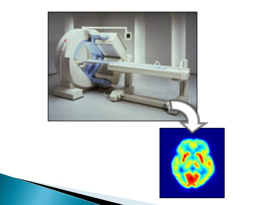 Cintilografia de perfusão: É uma avaliação do fluxo sanguíneo por todo o pulmão, ou seja, se há obstruções nos vasos como em caso de tromboembolia pulmonar.