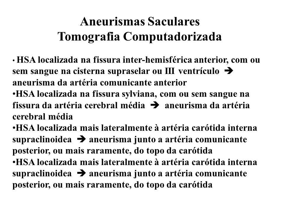 Aneurismas Saculares Tomografia Computadorizada HSA localizada na fissura inter-hemisférica anterior, com ou sem sangue na cisterna supraselar ou III