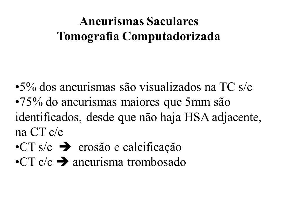 Aneurismas Saculares Tomografia Computadorizada 5% dos aneurismas são visualizados na TC s/c 75% do aneurismas maiores que 5mm são identificados, desd