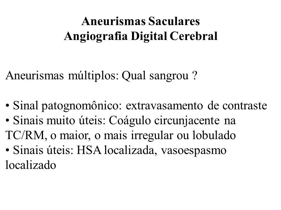 Aneurismas Saculares Angiografia Digital Cerebral Aneurismas múltiplos: Qual sangrou ? Sinal patognomônico: extravasamento de contraste Sinais muito ú