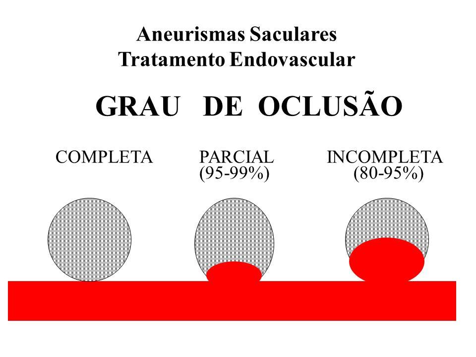 Aneurismas Saculares Tratamento Endovascular GRAU DE OCLUSÃO COMPLETA PARCIAL INCOMPLETA (95-99%) (80-95%)