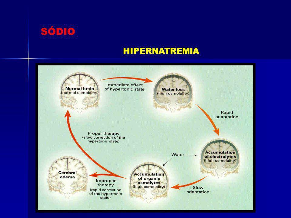 Condições normais Hipernatremia por perda de água pura (ex: Diabetes insipidus) Hipernatremia por perda de fluídos hipotônico (ex: vômitos) Hipernatremia por perda de fluídos hipotônico em sódio e potássio (ex: Diurese osmótica) Hipernatremia por ganho de sódio hipertônico (ex: Infusão de bicarbonato de sódio)