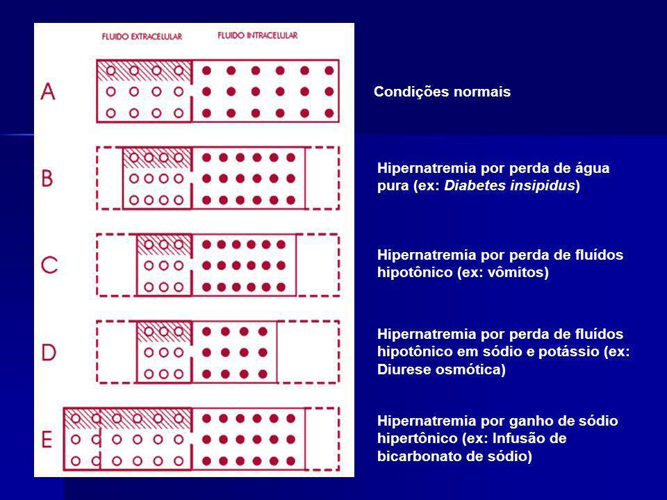 Condições normais Hipernatremia por perda de água pura (ex: Diabetes insipidus) Hipernatremia por perda de fluídos hipotônico (ex: vômitos) Hipernatre