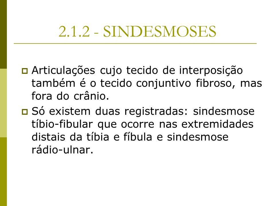 2.1.2 - SINDESMOSES Articulações cujo tecido de interposição também é o tecido conjuntivo fibroso, mas fora do crânio. Só existem duas registradas: si