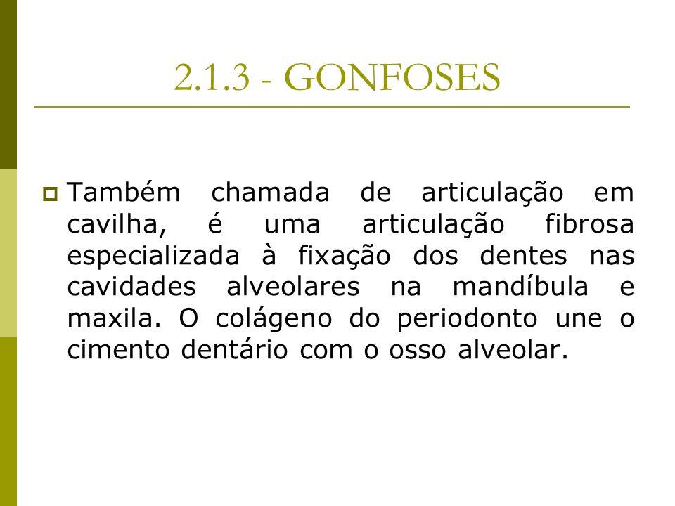 2.1.3 - GONFOSES Também chamada de articulação em cavilha, é uma articulação fibrosa especializada à fixação dos dentes nas cavidades alveolares na ma