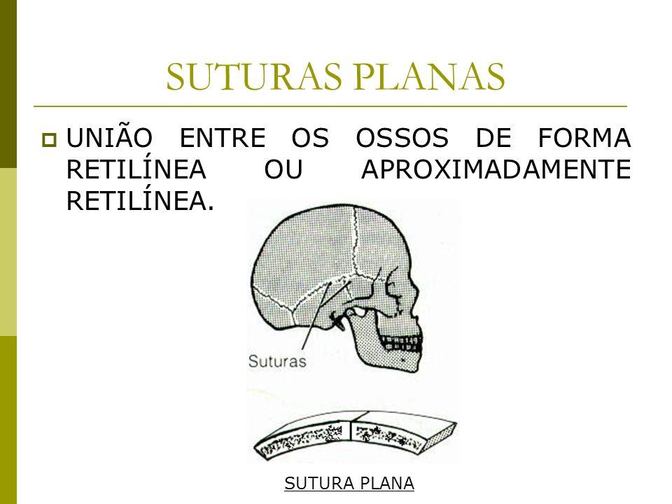 SUTURAS PLANAS UNIÃO ENTRE OS OSSOS DE FORMA RETILÍNEA OU APROXIMADAMENTE RETILÍNEA. SUTURA PLANA