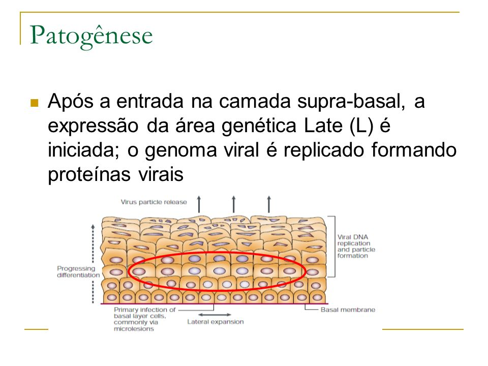 Patogênese Após a entrada na camada supra-basal, a expressão da área genética Late (L) é iniciada; o genoma viral é replicado formando proteínas virai