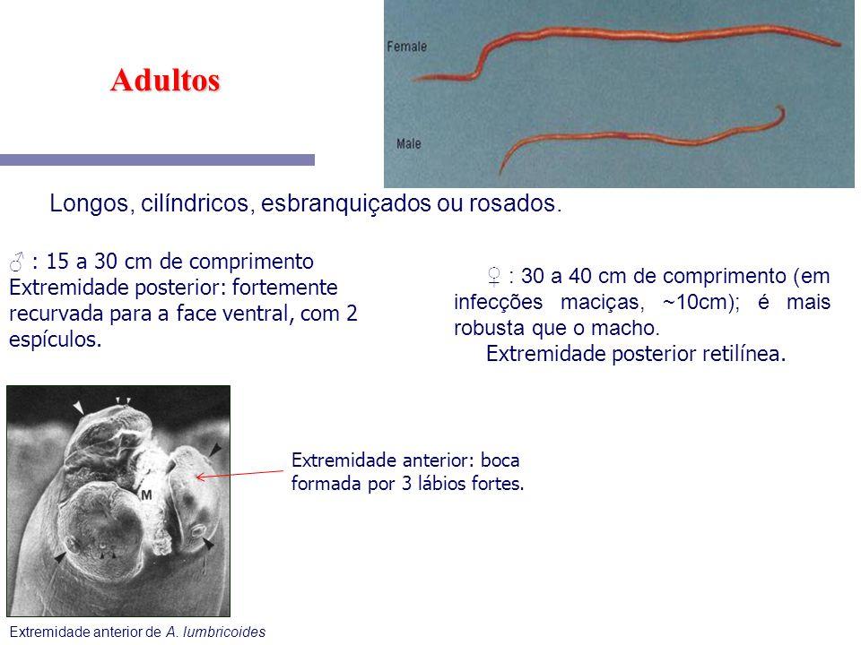 Extremidade anterior de A. lumbricoides : 15 a 30 cm de comprimento Extremidade posterior: fortemente recurvada para a face ventral, com 2 espículos.