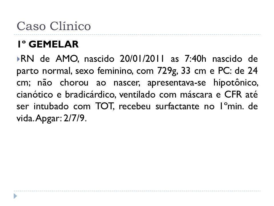 Caso Clínico 1º GEMELAR RN de AMO, nascido 20/01/2011 as 7:40h nascido de parto normal, sexo feminino, com 729g, 33 cm e PC: de 24 cm; não chorou ao n