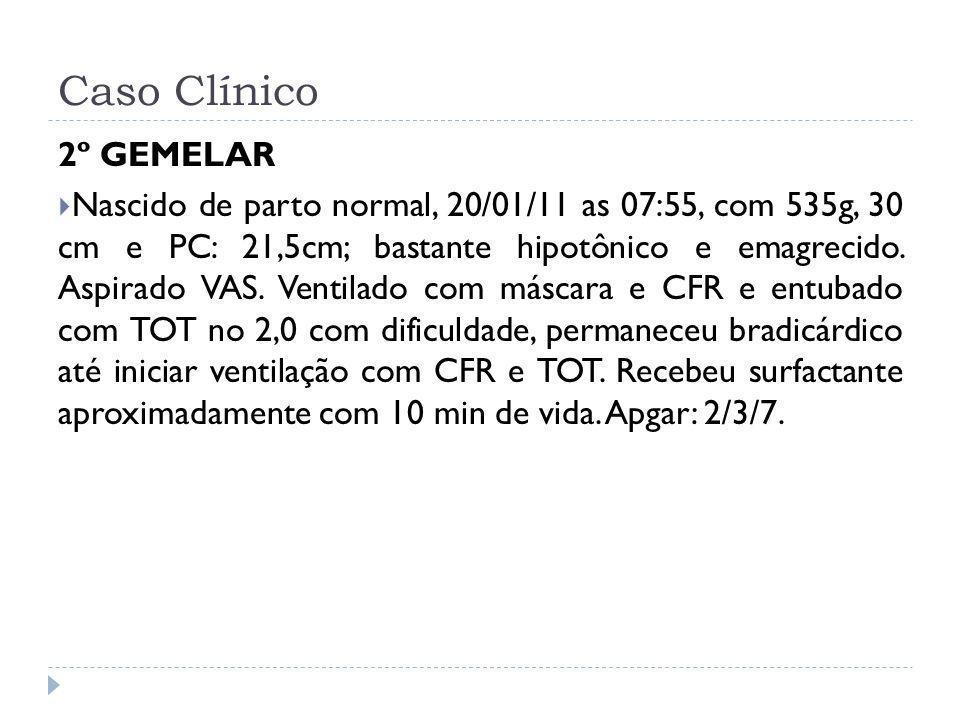 Caso Clínico 2º GEMELAR Nascido de parto normal, 20/01/11 as 07:55, com 535g, 30 cm e PC: 21,5cm; bastante hipotônico e emagrecido. Aspirado VAS. Vent