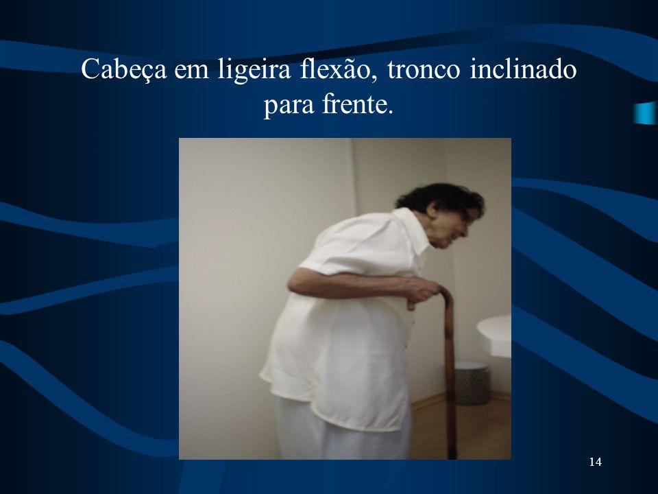 13 POSTURA FLETIDA atitude característicaA rigidez parkinsoniana confere ao doente uma atitude característica: Cabeça em ligeira flexão, tronco ligeir