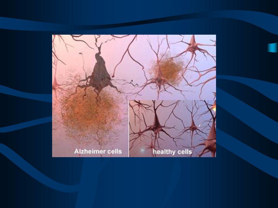Fisiopatologia proposta: Formação de depósitos proteicos fibrilhares – Placas neuríticas ou senis. Uma proteina percursora do amiloide (APP)– constitu