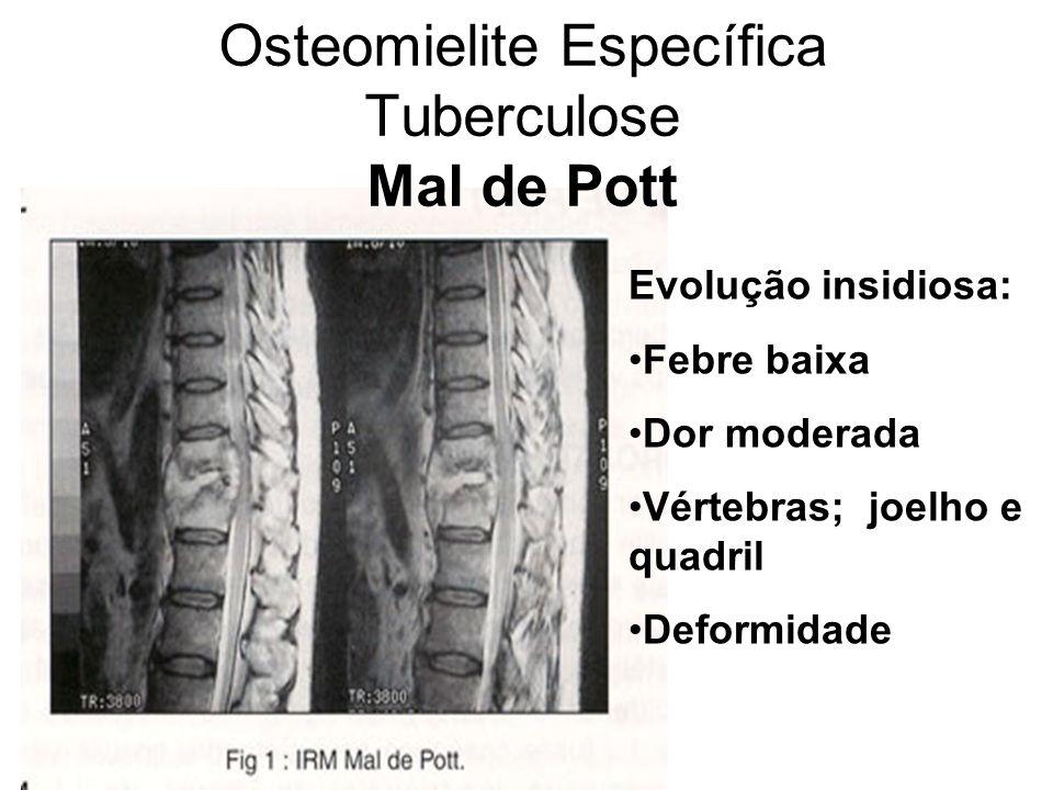 Osteomielite Específica Tuberculose Mal de Pott Evolução insidiosa: Febre baixa Dor moderada Vértebras; joelho e quadril Deformidade