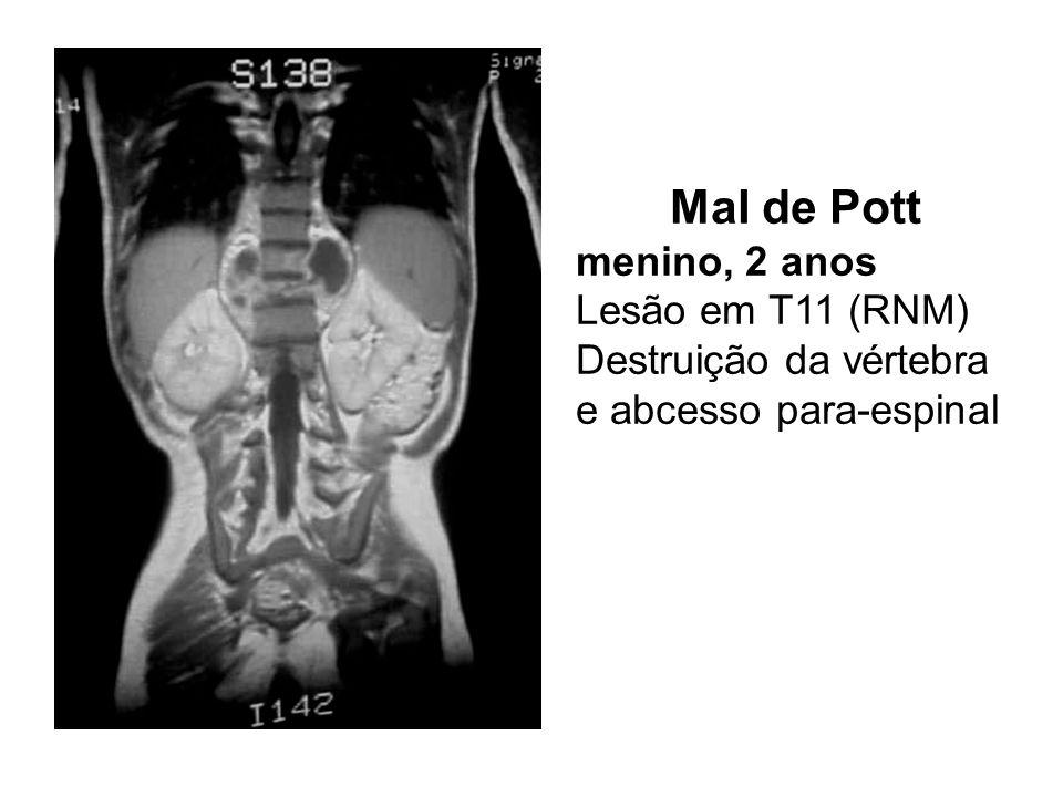 Mal de Pott menino, 2 anos Lesão em T11 (RNM) Destruição da vértebra e abcesso para-espinal