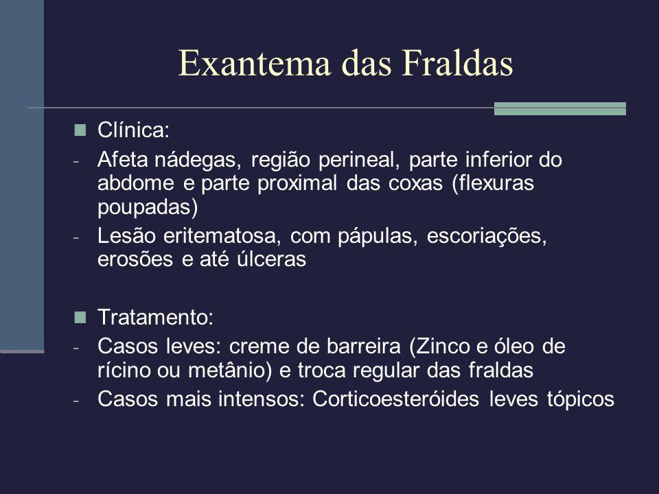Exantema das Fraldas Clínica: - Afeta nádegas, região perineal, parte inferior do abdome e parte proximal das coxas (flexuras poupadas) - Lesão eritem