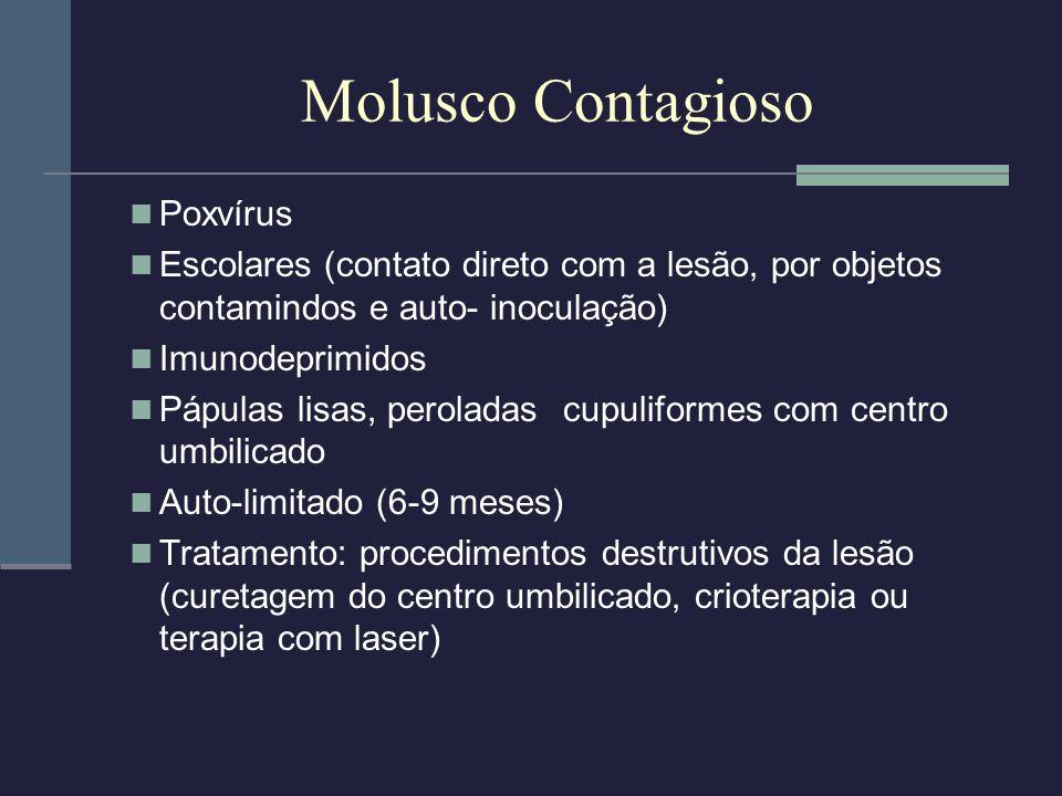 Molusco Contagioso Poxvírus Escolares (contato direto com a lesão, por objetos contamindos e auto- inoculação) Imunodeprimidos Pápulas lisas, perolada