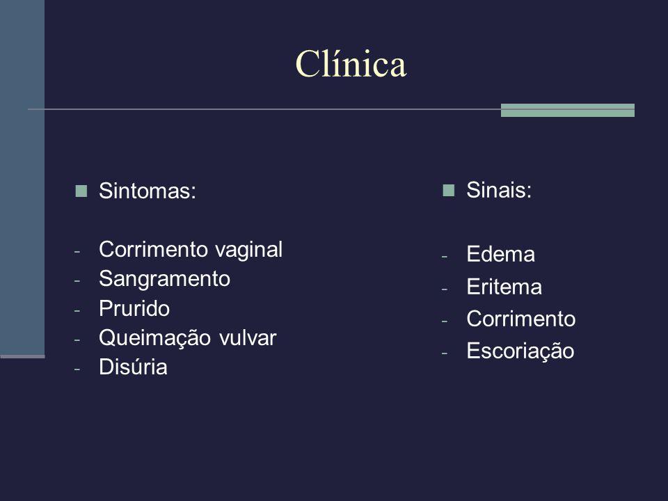 Clínica Sintomas: - Corrimento vaginal - Sangramento - Prurido - Queimação vulvar - Disúria Sinais: - Edema - Eritema - Corrimento - Escoriação