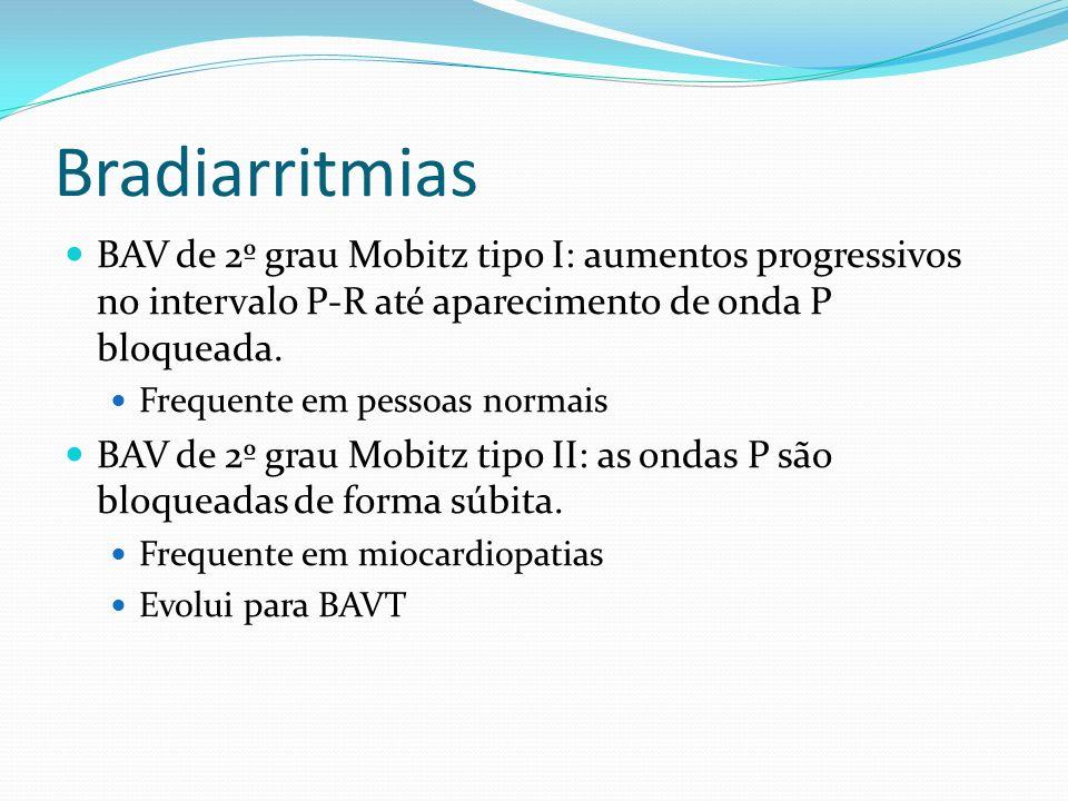 Bradiarritmias BAV de 2º grau Mobitz tipo I: aumentos progressivos no intervalo P-R até aparecimento de onda P bloqueada. Frequente em pessoas normais