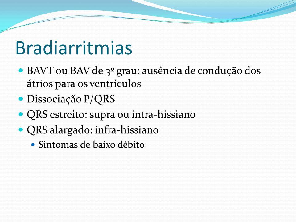 Bradiarritmias BAVT ou BAV de 3º grau: ausência de condução dos átrios para os ventrículos Dissociação P/QRS QRS estreito: supra ou intra-hissiano QRS