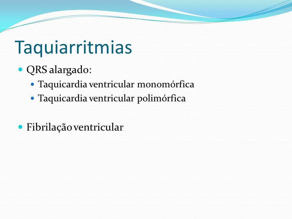 Taquiarritmias QRS alargado: Taquicardia ventricular monomórfica Taquicardia ventricular polimórfica Fibrilação ventricular