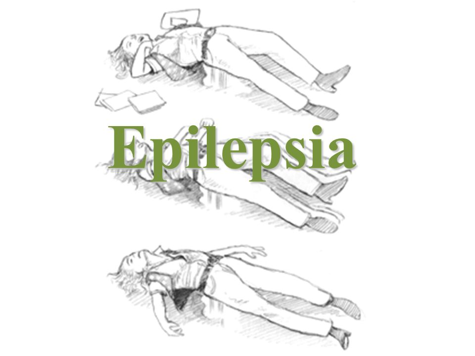 Epilepsia Epilepsia é a condição de convulsões recorrentes causadas por uma anormalidade cerebral inerente.