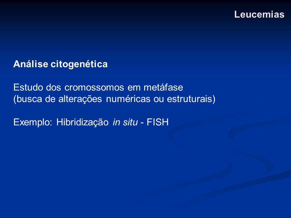 Análise citogenética Estudo dos cromossomos em metáfase (busca de alterações numéricas ou estruturais) Exemplo: Hibridização in situ - FISH Leucemias