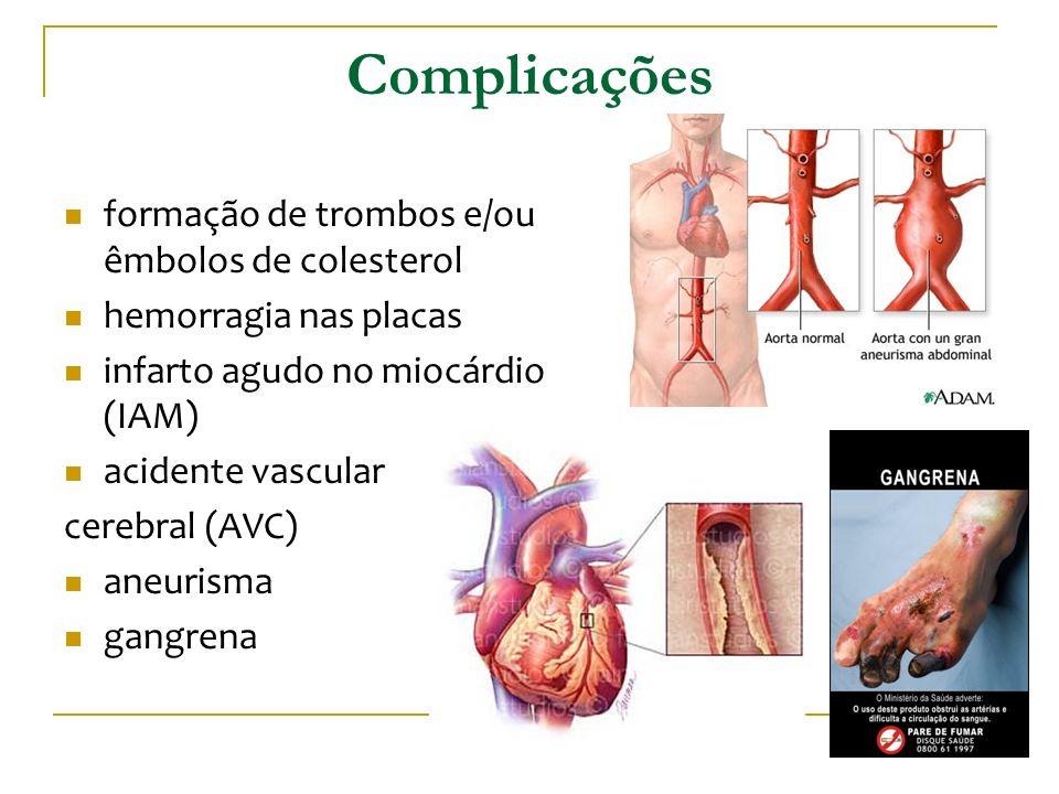 Complicações formação de trombos e/ou êmbolos de colesterol hemorragia nas placas infarto agudo no miocárdio (IAM) acidente vascular cerebral (AVC) an